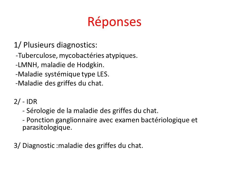 Réponses 1/ Plusieurs diagnostics:
