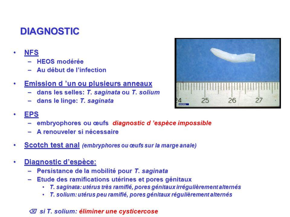 DIAGNOSTIC NFS Emission d 'un ou plusieurs anneaux EPS