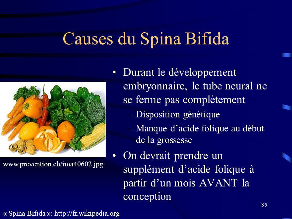 Causes du Spina Bifida Durant le développement embryonnaire, le tube neural ne se ferme pas complètement.