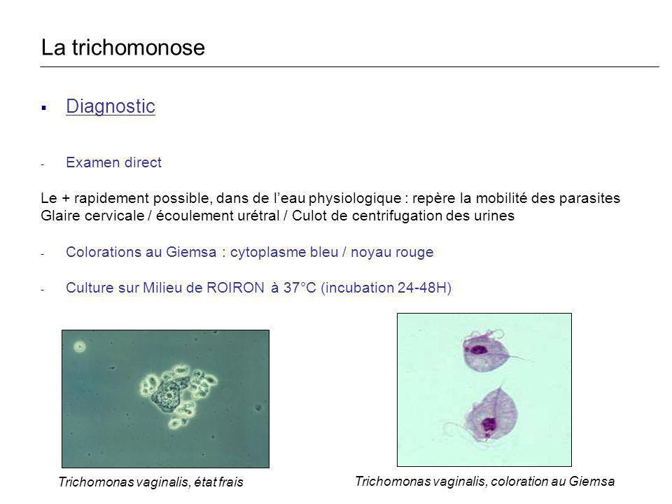 La trichomonose Diagnostic Examen direct