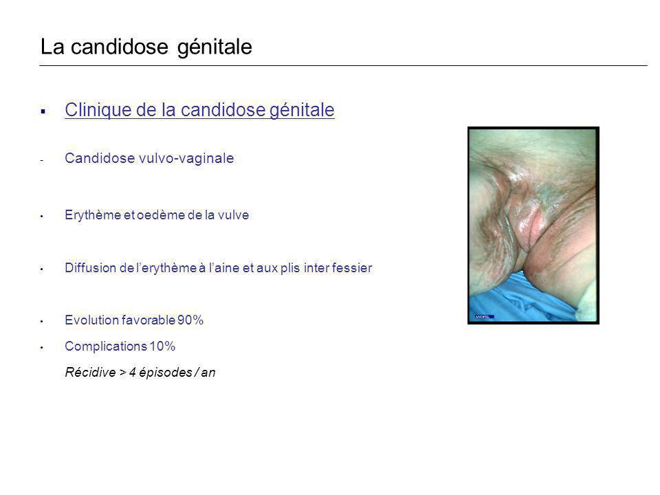 La candidose génitale Clinique de la candidose génitale
