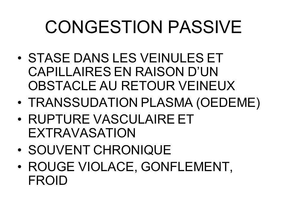 CONGESTION PASSIVE STASE DANS LES VEINULES ET CAPILLAIRES EN RAISON D'UN OBSTACLE AU RETOUR VEINEUX.
