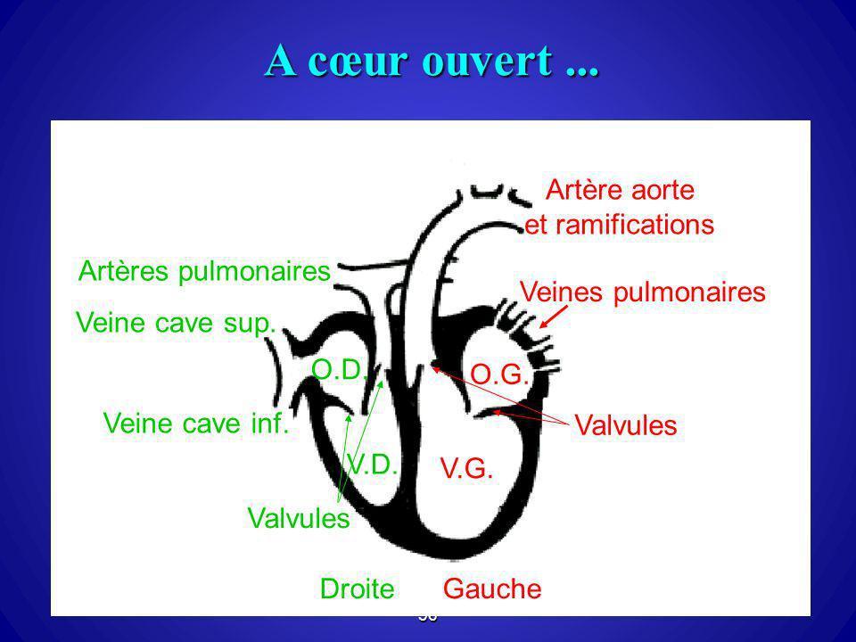 A cœur ouvert ... Artères pulmonaires Artère aorte et ramifications