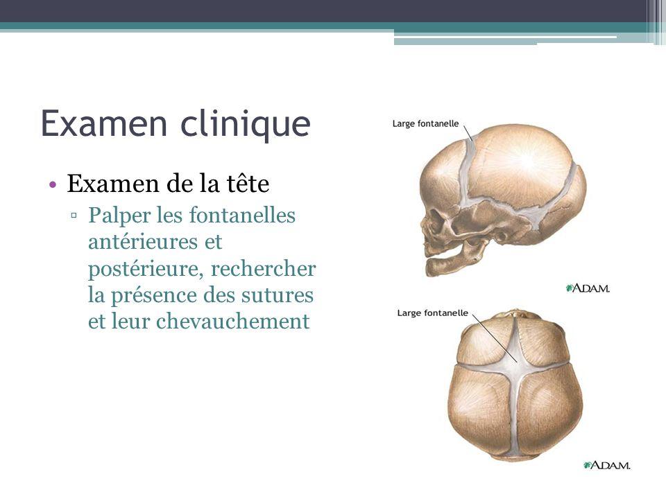 Examen clinique Examen de la tête