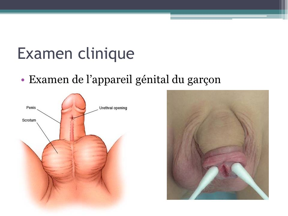 Examen clinique Examen de l'appareil génital du garçon