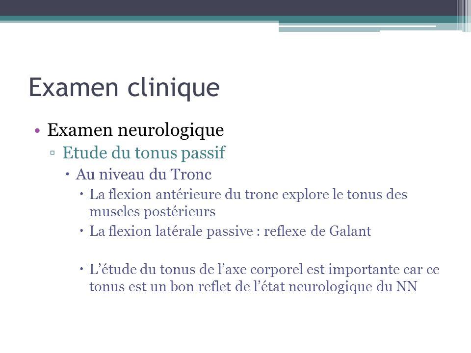 Examen clinique Examen neurologique Etude du tonus passif
