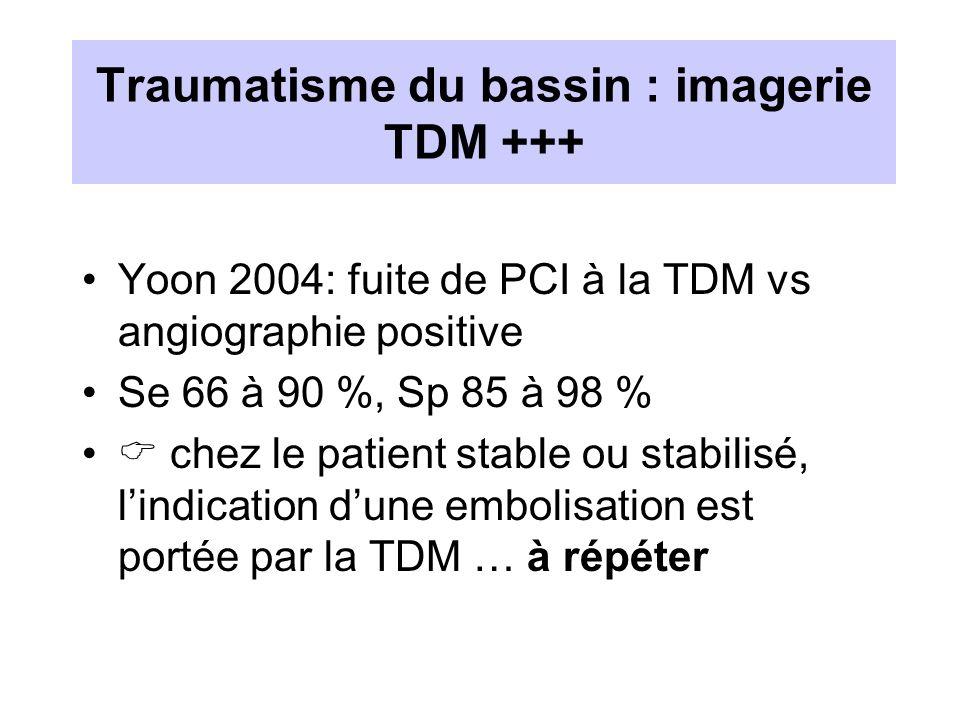 Traumatisme du bassin : imagerie TDM +++