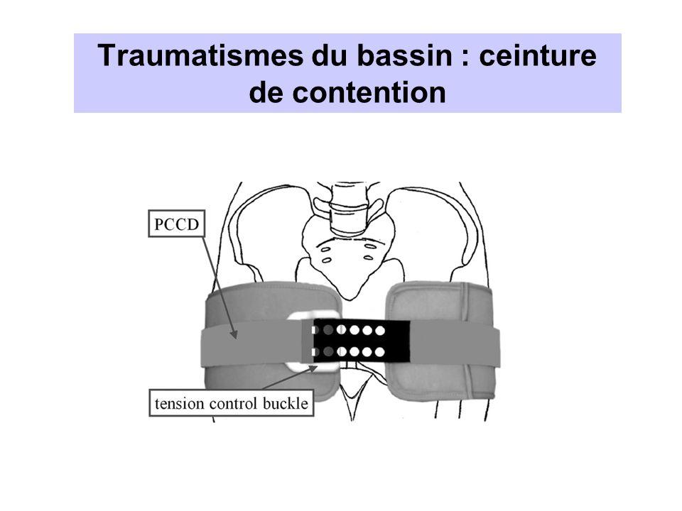 Traumatismes du bassin : ceinture de contention