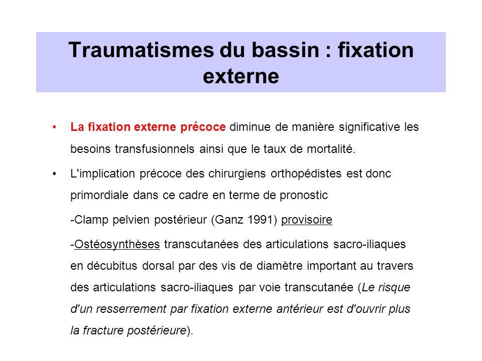 Traumatismes du bassin : fixation externe