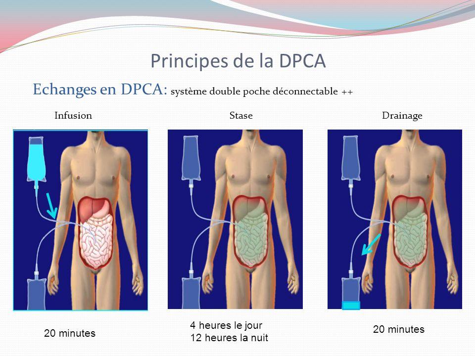 Principes de la DPCA Infusion Stase Drainage