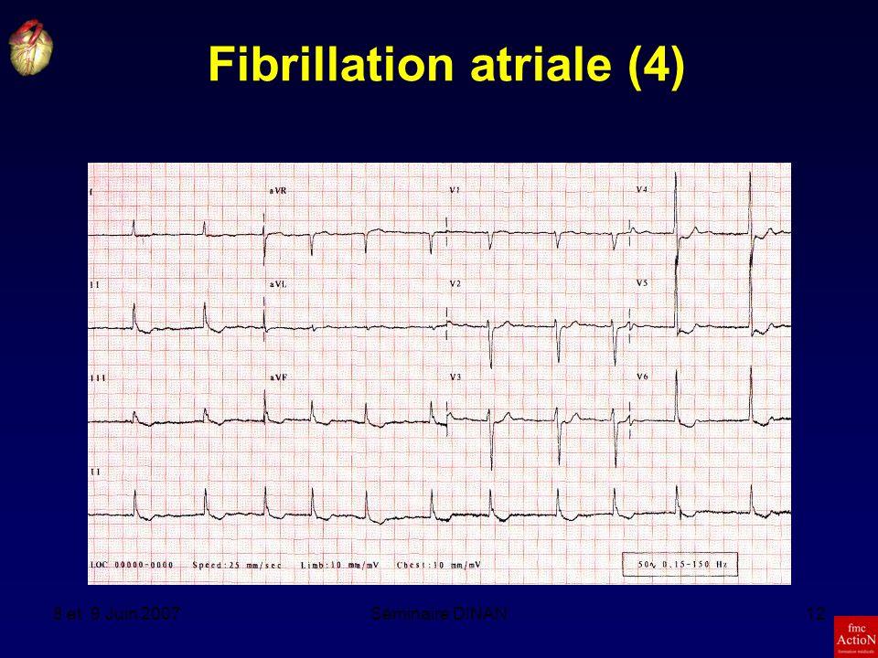 Fibrillation atriale (4)