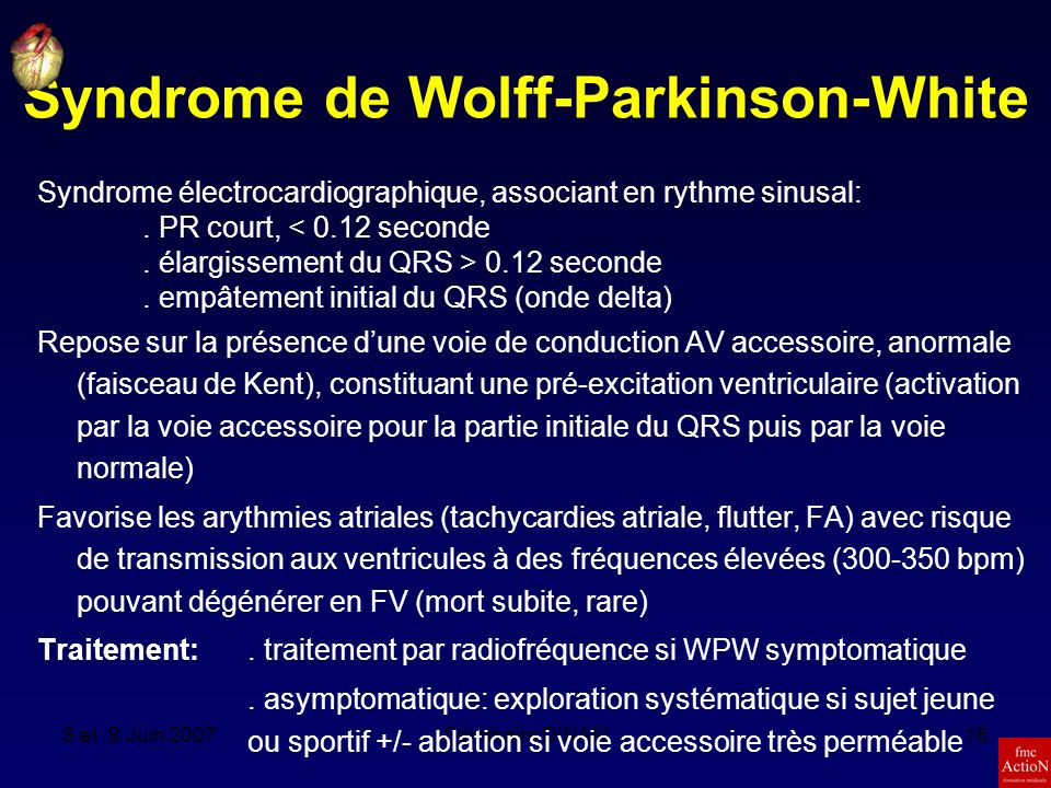 Syndrome de Wolff-Parkinson-White