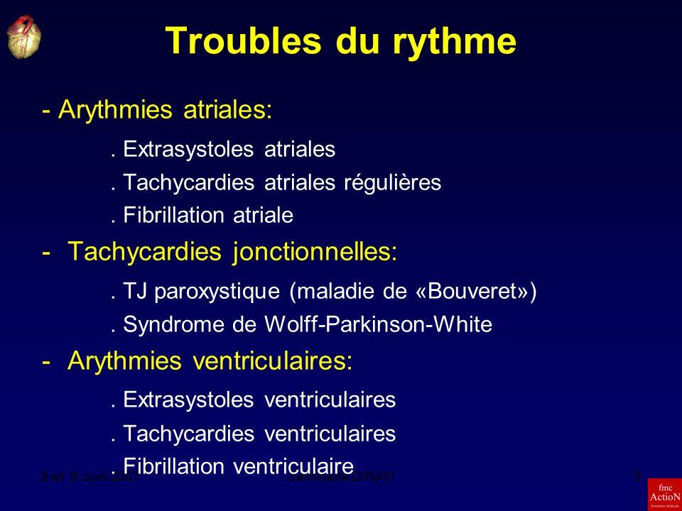 Troubles du rythme - Arythmies atriales: . Extrasystoles atriales