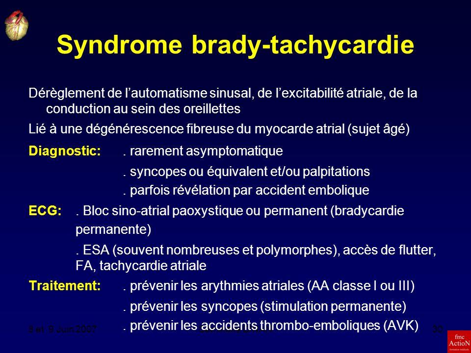 Syndrome brady-tachycardie