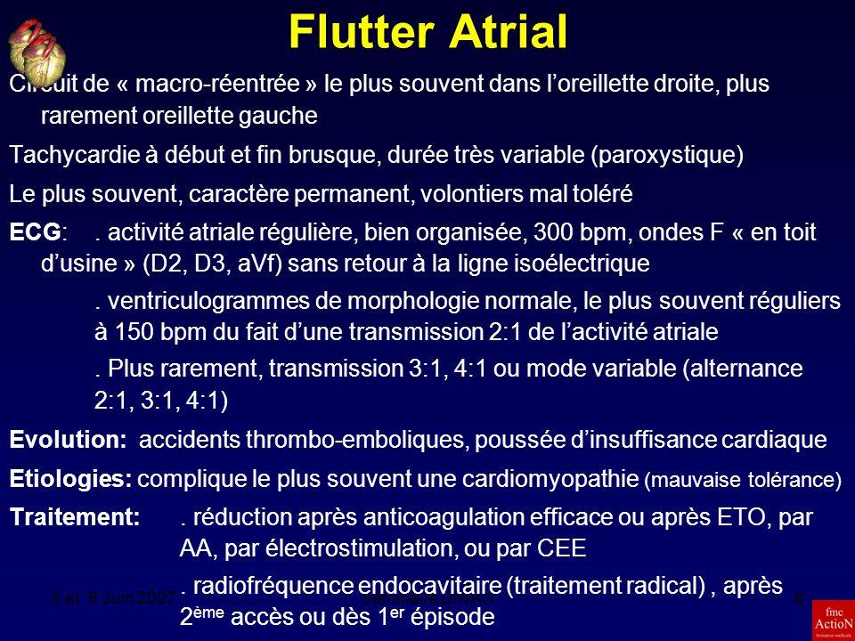 Flutter Atrial Circuit de « macro-réentrée » le plus souvent dans l'oreillette droite, plus rarement oreillette gauche.