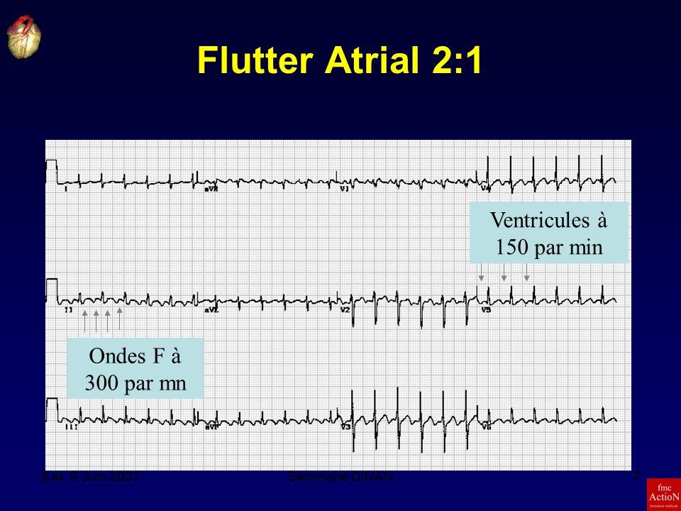 Flutter Atrial 2:1 Ventricules à 150 par min Ondes F à 300 par mn