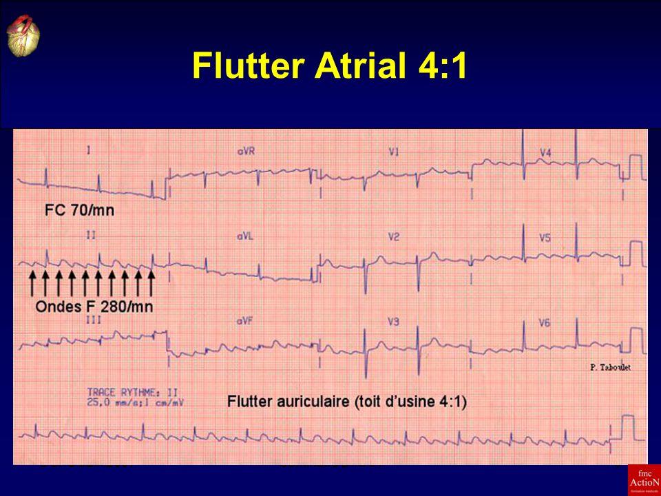 Flutter Atrial 4:1 8 et 9 Juin 2007 Séminaire DINAN