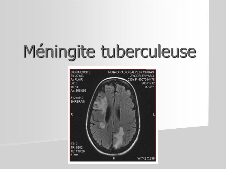 Méningite tuberculeuse
