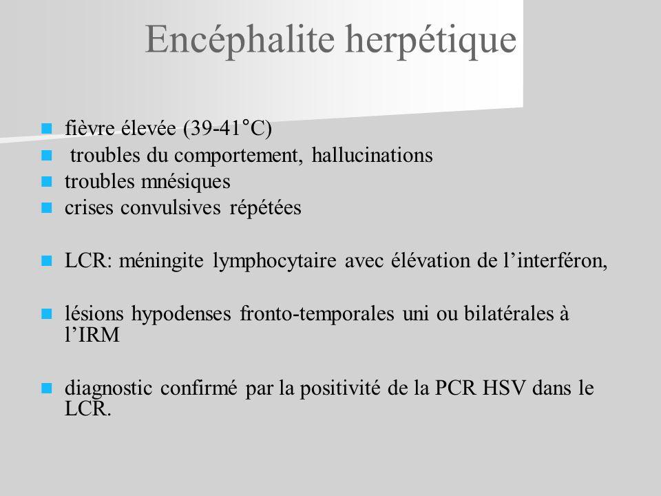 Encéphalite herpétique