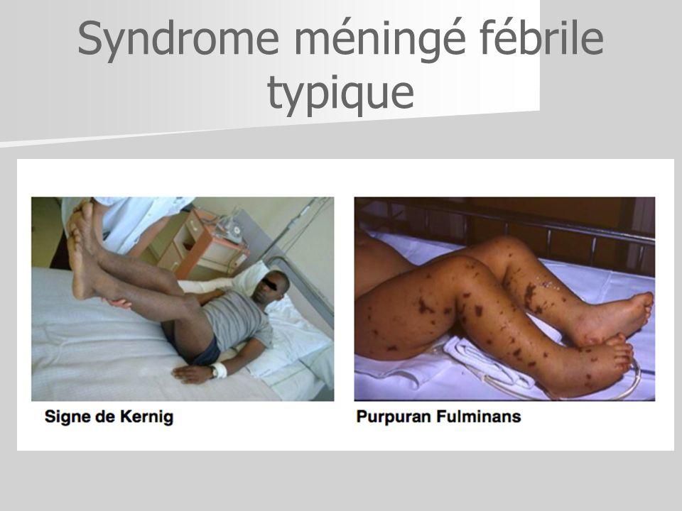 Syndrome méningé fébrile typique