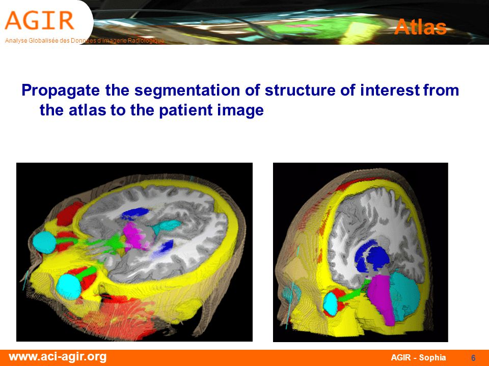 Atlas Propagate the segmentation of structure of interest from the atlas to the patient image.