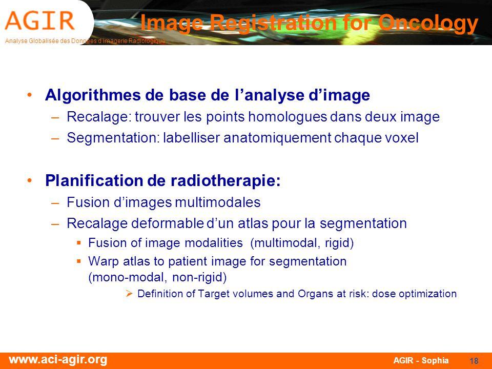 Image Registration for Oncology