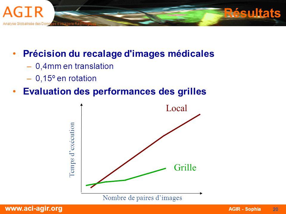 Résultats Précision du recalage d images médicales