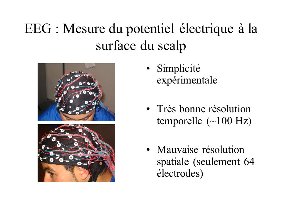 EEG : Mesure du potentiel électrique à la surface du scalp