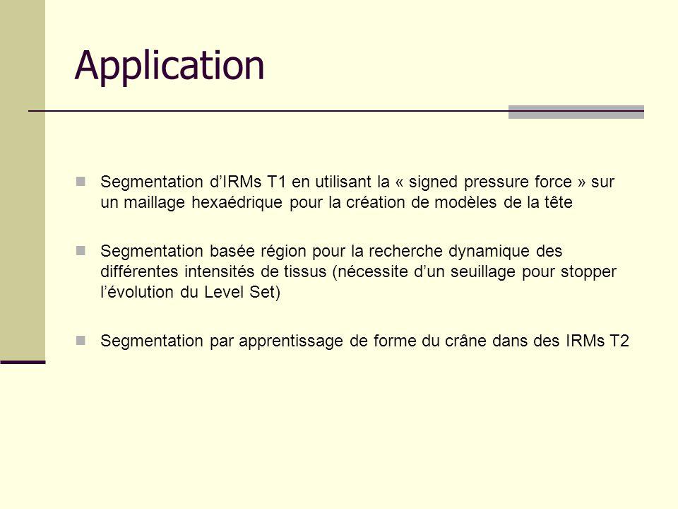 Application Segmentation d'IRMs T1 en utilisant la « signed pressure force » sur un maillage hexaédrique pour la création de modèles de la tête.