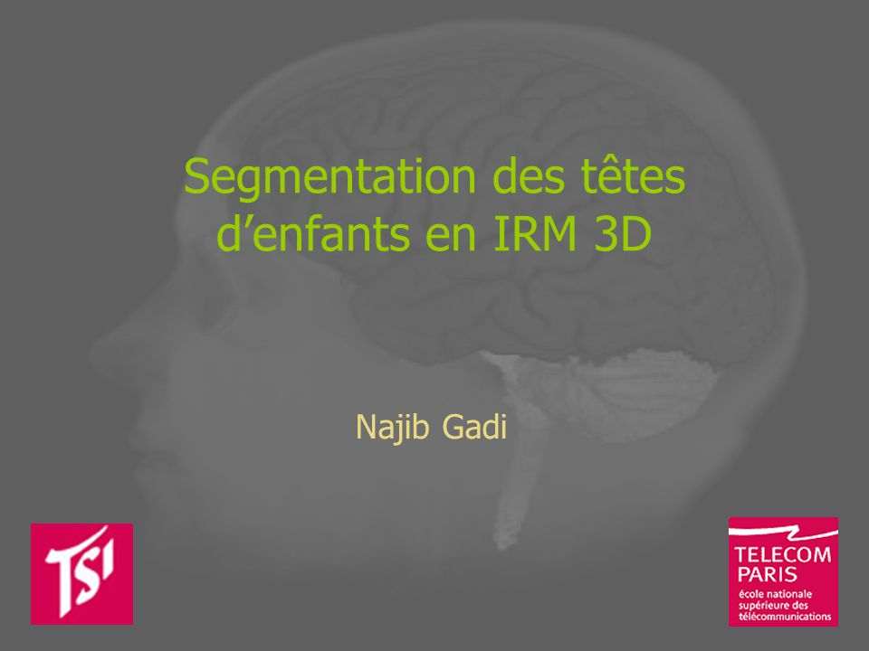 Segmentation des têtes d'enfants en IRM 3D