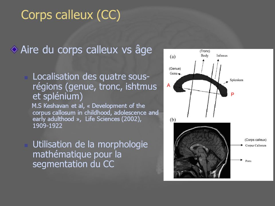 Corps calleux (CC) Aire du corps calleux vs âge