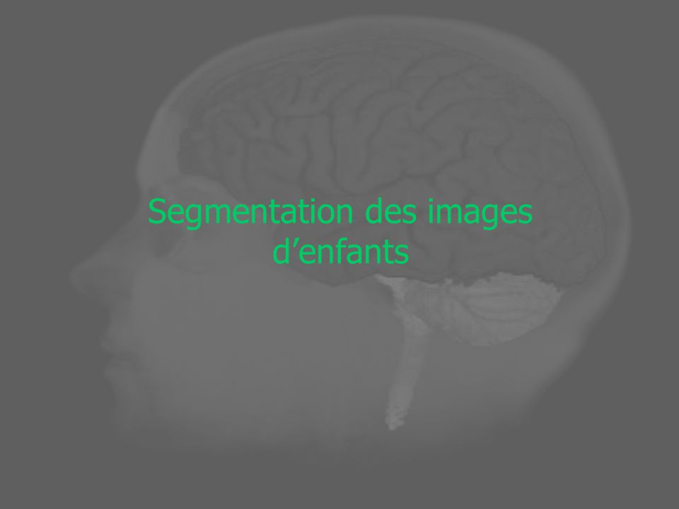 Segmentation des images d'enfants