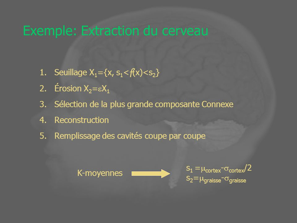 Exemple: Extraction du cerveau