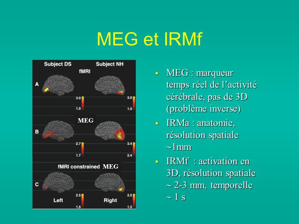 MEG et IRMf MEG : marqueur temps réel de l'activité cérébrale, pas de 3D (problème inverse) IRMa : anatomie, résolution spatiale 1mm.