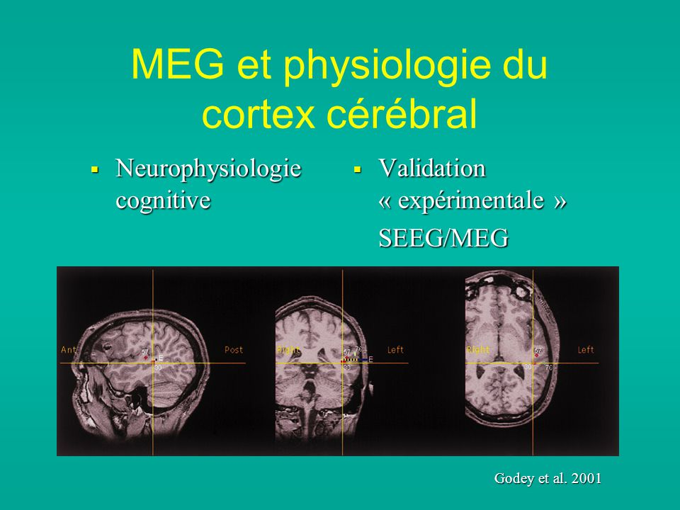 MEG et physiologie du cortex cérébral