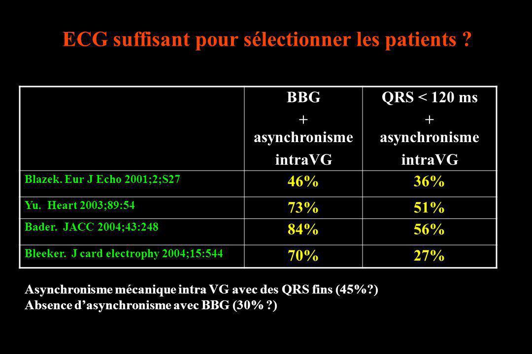 ECG suffisant pour sélectionner les patients