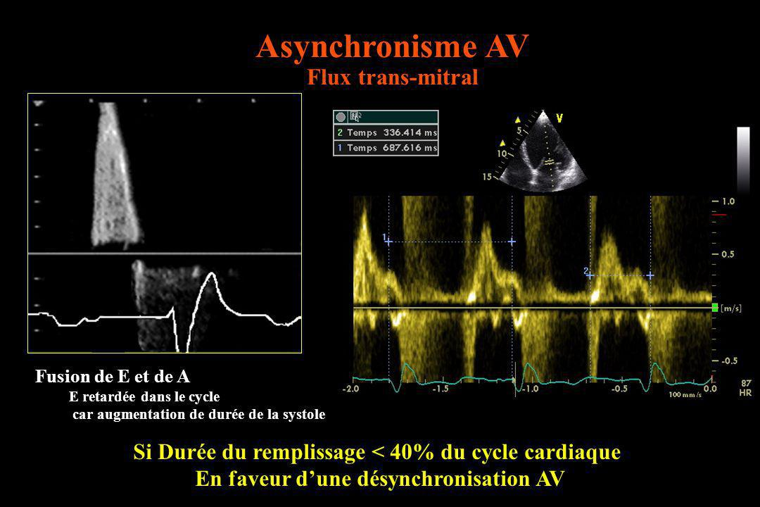 Asynchronisme AV Flux trans-mitral