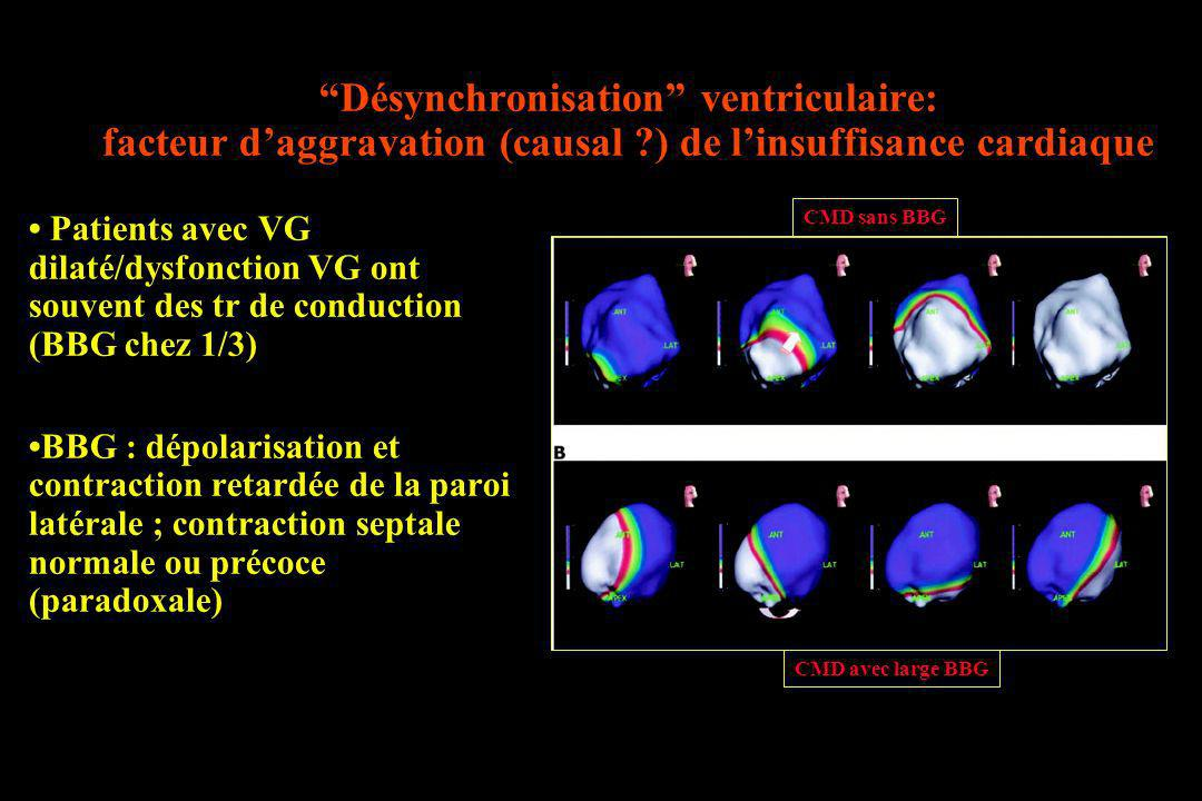 Désynchronisation ventriculaire: facteur d'aggravation (causal