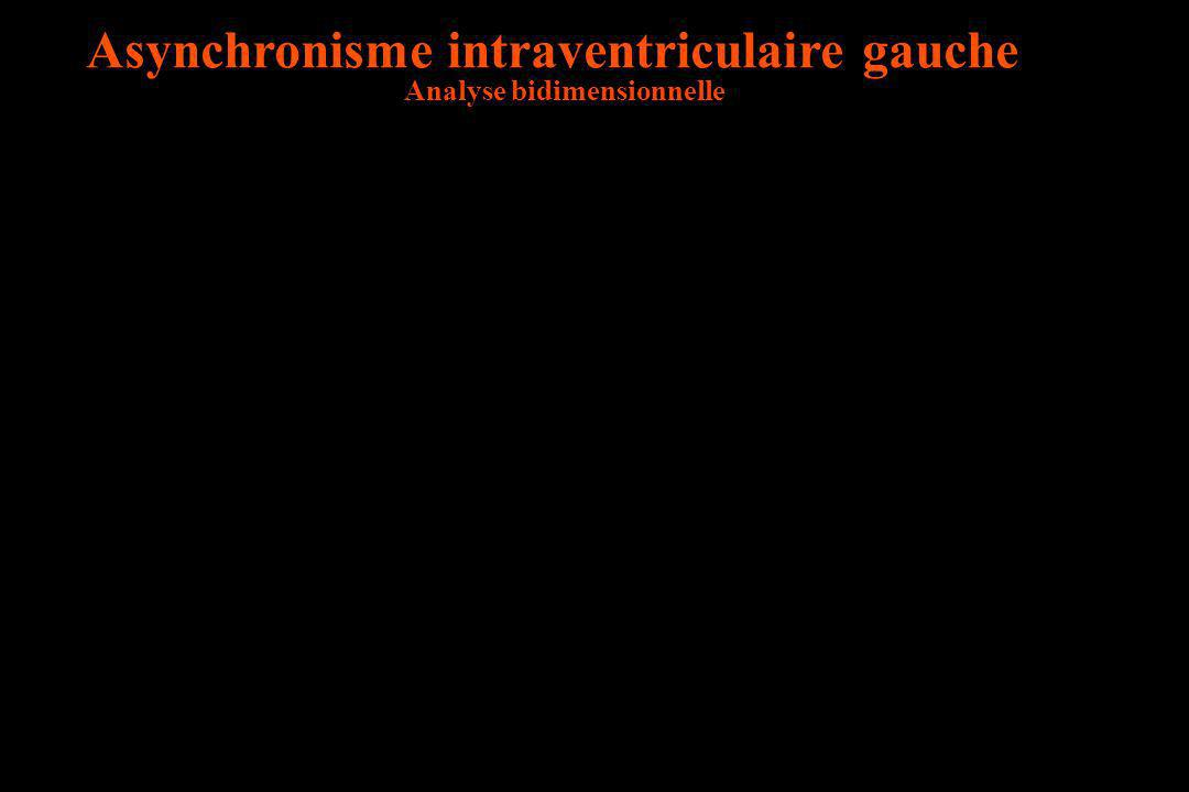 Asynchronisme intraventriculaire gauche Analyse bidimensionnelle