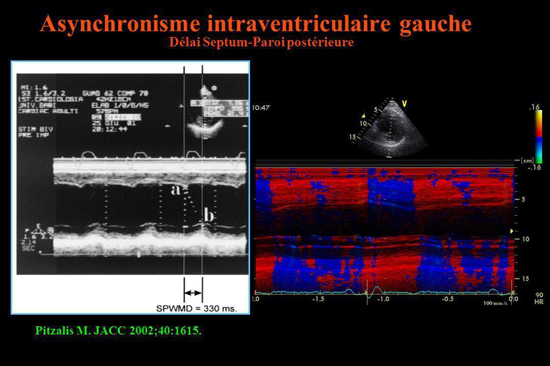 Asynchronisme intraventriculaire gauche Délai Septum-Paroi postérieure