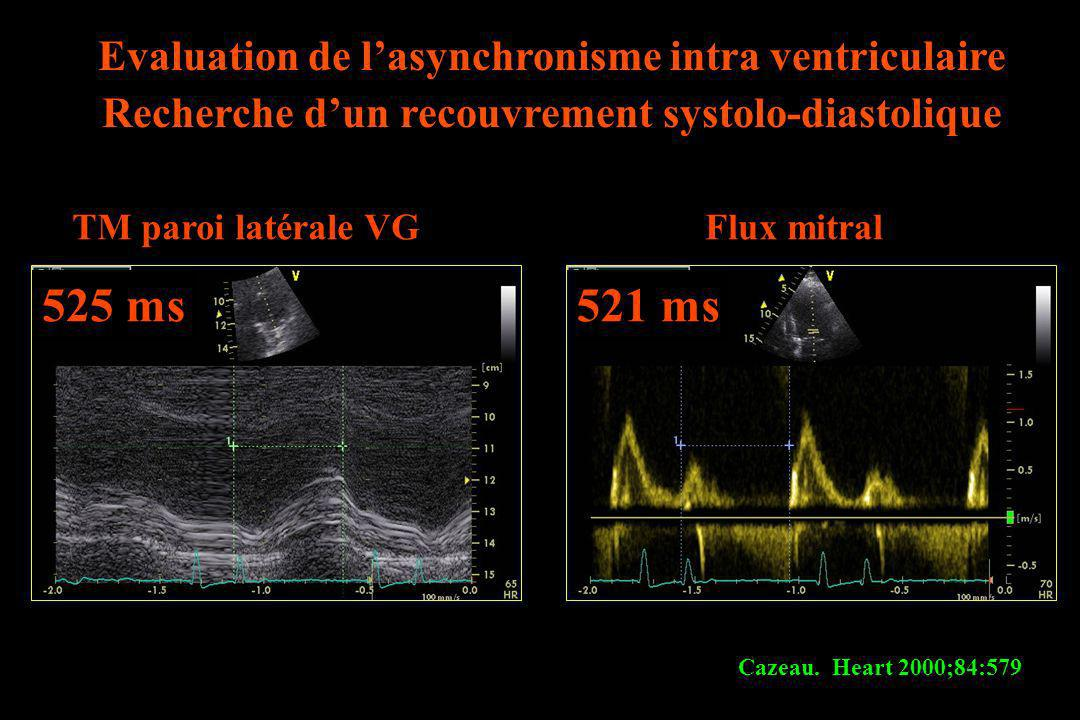 525 ms 521 ms Evaluation de l'asynchronisme intra ventriculaire
