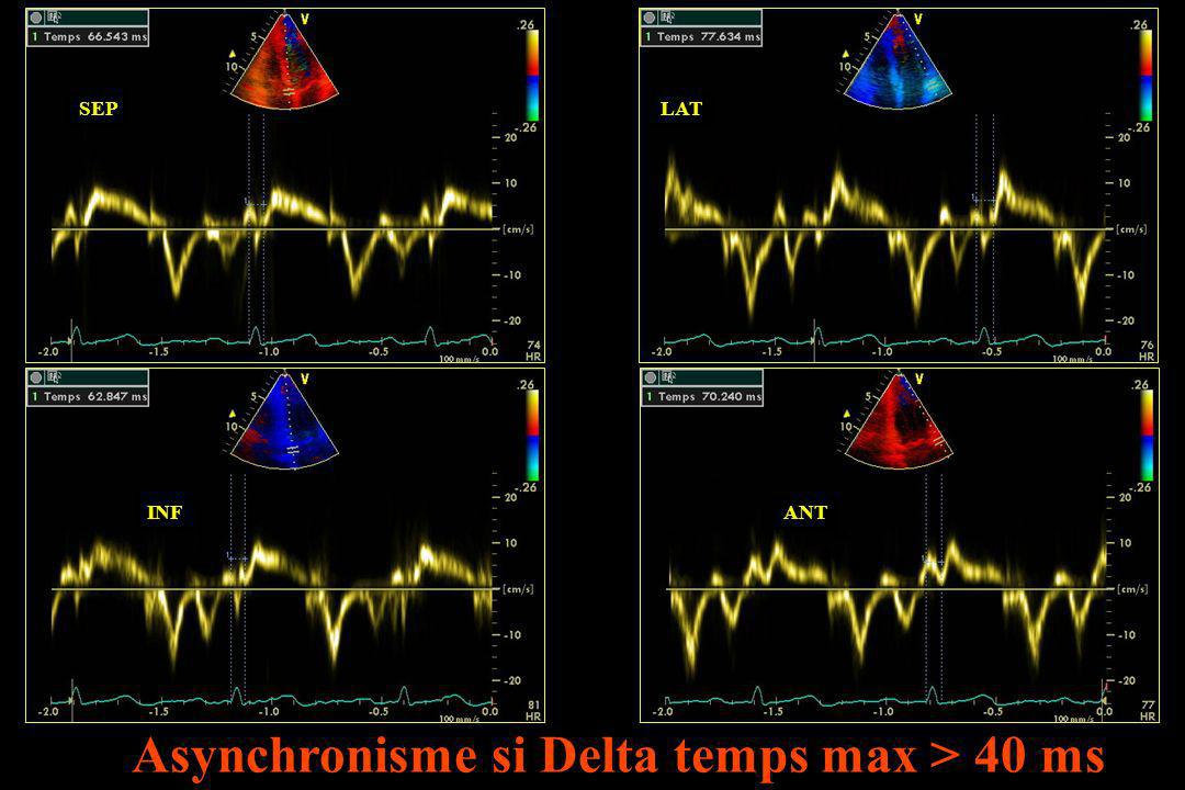 Asynchronisme si Delta temps max > 40 ms