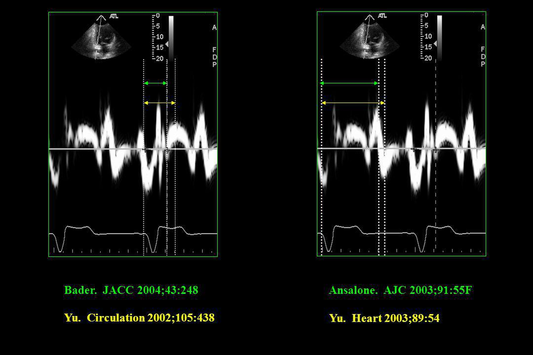 Bader. JACC 2004;43:248 Ansalone. AJC 2003;91:55F.