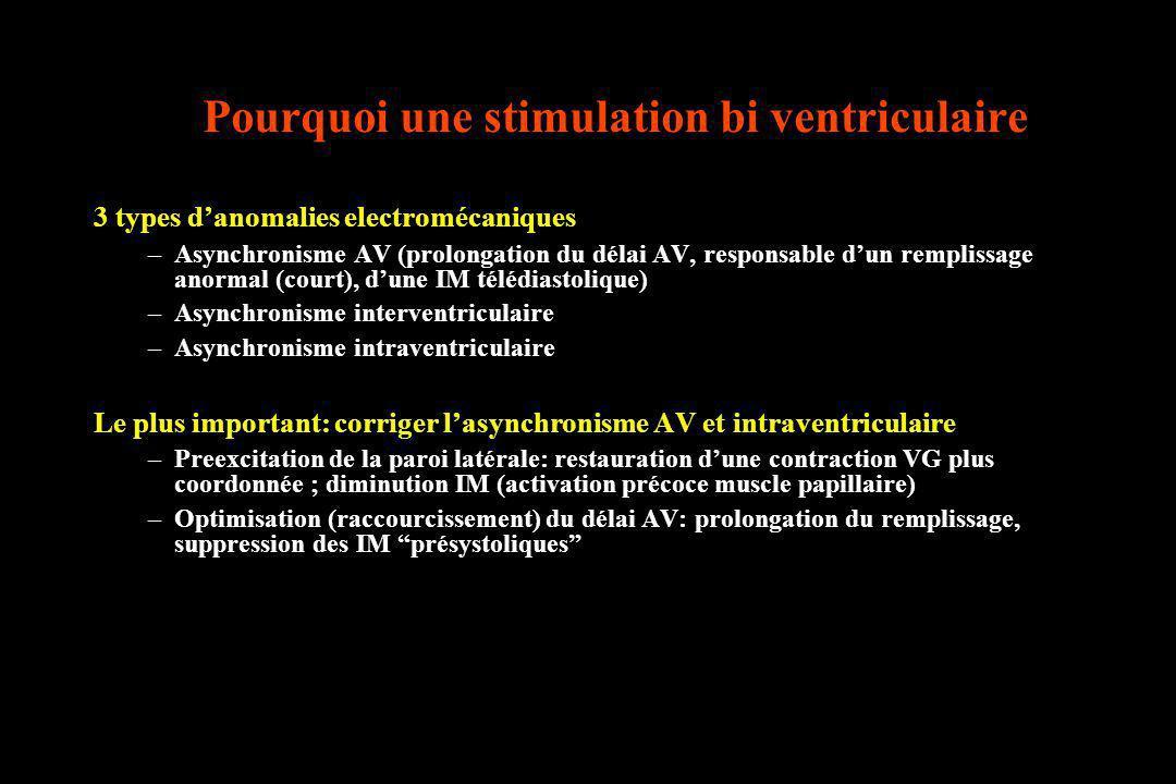 Pourquoi une stimulation bi ventriculaire