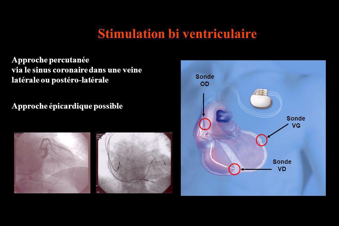 Stimulation bi ventriculaire