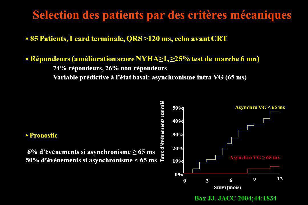 Selection des patients par des critères mécaniques