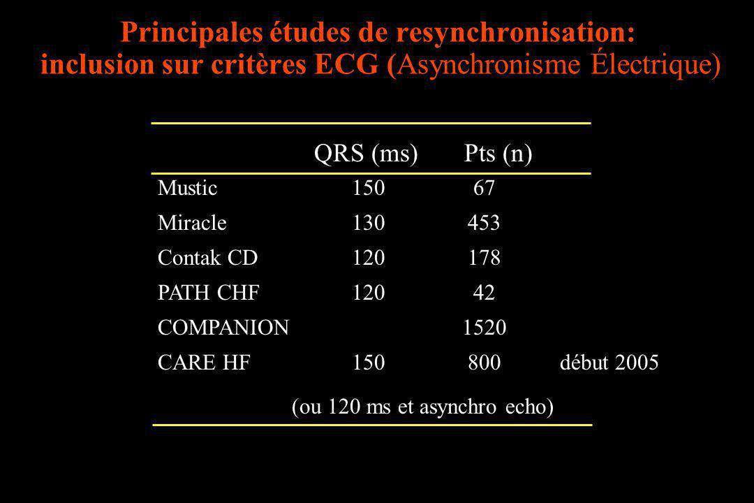Principales études de resynchronisation: inclusion sur critères ECG (Asynchronisme Électrique)