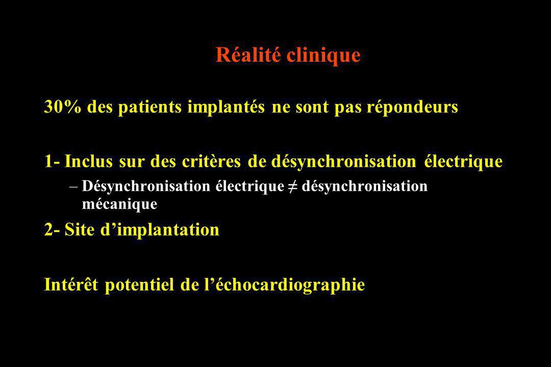 Réalité clinique 30% des patients implantés ne sont pas répondeurs