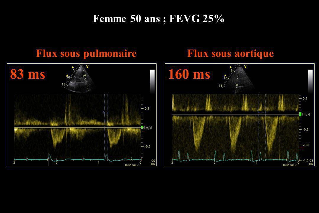 83 ms 160 ms Femme 50 ans ; FEVG 25% Flux sous pulmonaire