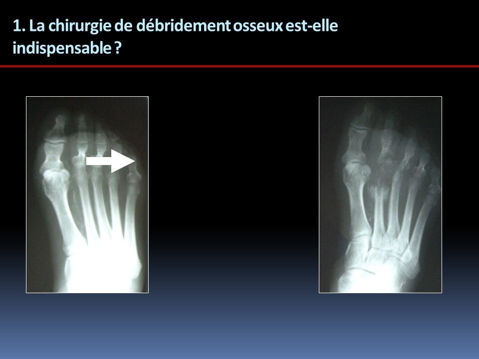1. La chirurgie de débridement osseux est-elle indispensable